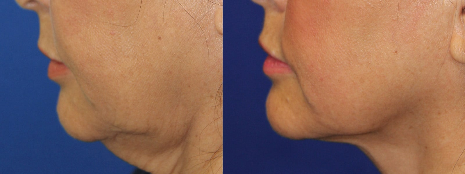 Loose Neck Skin, Double Chin Surgery, Get Rid of Double Chin Fat, SkinFX Canada in Surrey