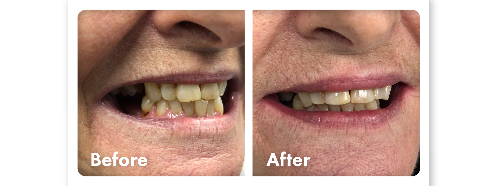 Before and after photos of smile contouring